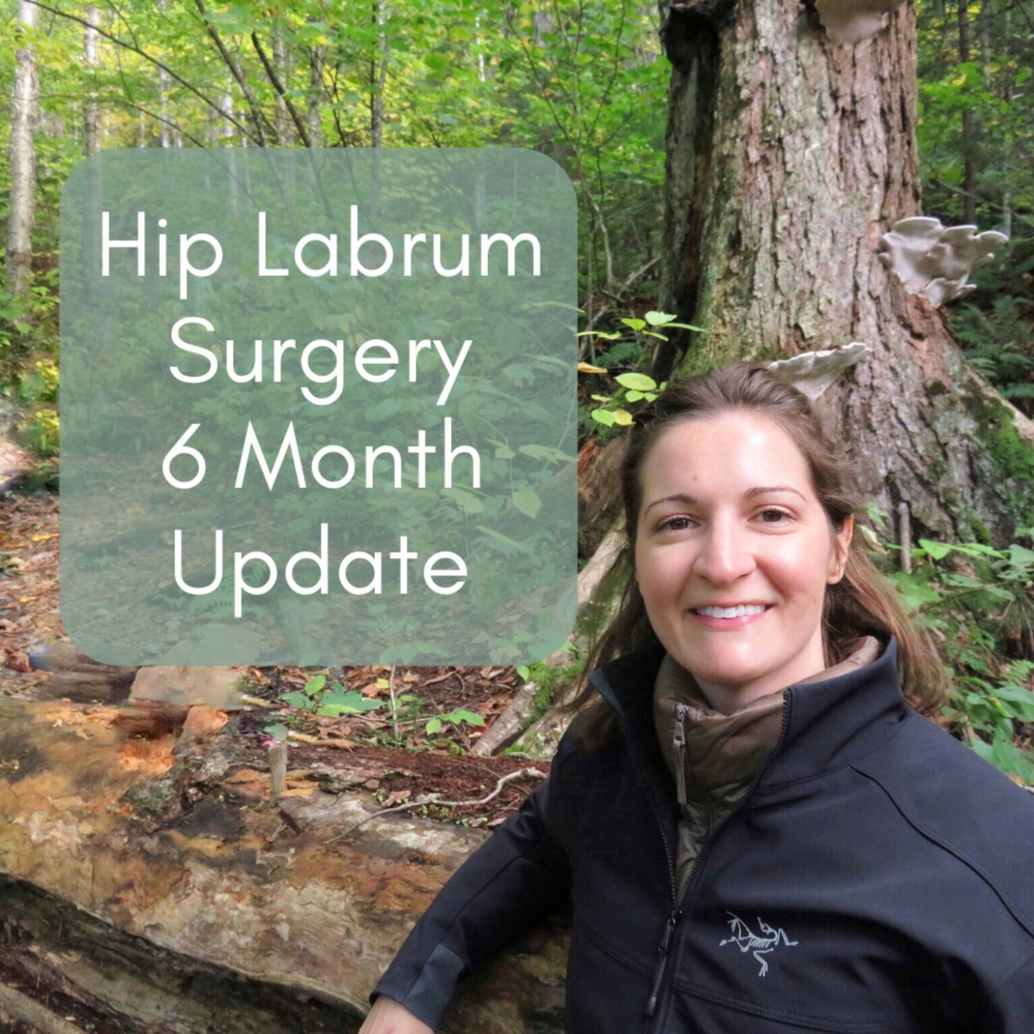 Hip Labrum Surgery: 6 Month Update After Hip Labral Tear Surgery